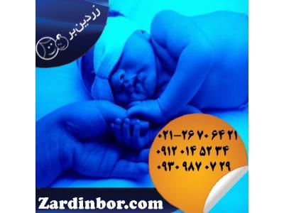 اجاره دستگاه زردی نوزاد با شرکت زردین بر