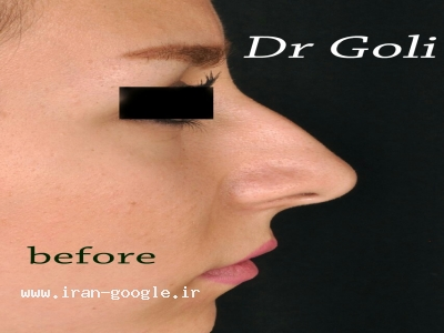 متخصص وجراح زیبایی گوش وحلق وبینی