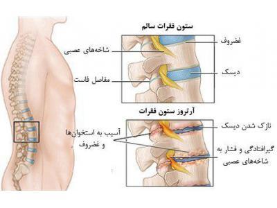درمان سلولی   دیسک کمر و گردن  و آرتروز زانو  با لیزر سلولی