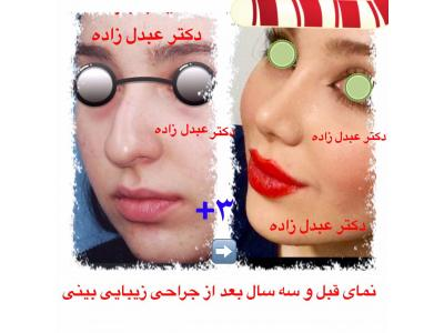 جراحی و زیبایی ترمیمی ، جراحی زیبایی بینی  ،  پیکرتراشی به روش لیزر لیپولیز و لیپوماتیک