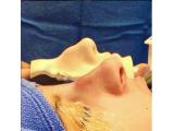 بهترین کلینیک زیبایی عمل لیپوماتیک،پیکر تراشی،جراحی زیبایی بینی پروتز سینه و لب و گونه هومارا