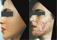 موثر ترین روش از بین بردن لک و چین و چروک صورت