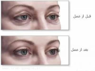 جراح پلک