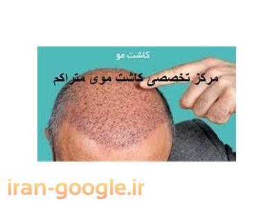 تخصصی ترین مرکز کاشت  مو  - کاشت موی متراکم - لیزر موهای زائد