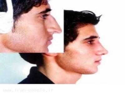 جراحی پلاستیک بینی و صورت با کمترین درد