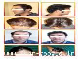 قیمت کاشت موی طبیعی|مرکز تخصصی موی رنسانس