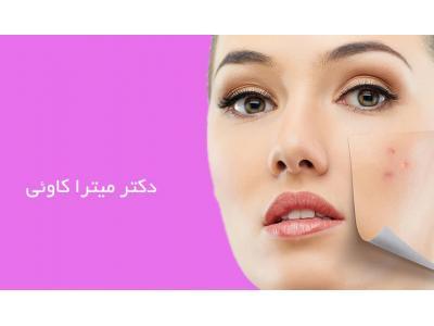 مطب پوست و مو محدوده خیابان آذربایجان