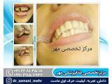 بهترین دندانپزشکی در شمال تهران
