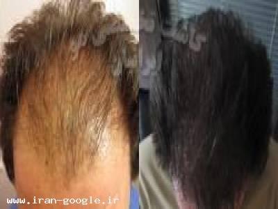کاشت مو - پیوندطبیعی مو ایرانیان