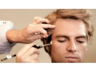 مرکز تخصصی کاشت مو