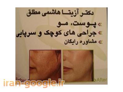 جوانسازی پوست و رفع چین و چروک صورت ، مزوتراپی