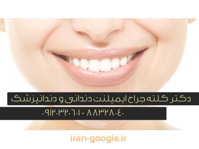 جراح ایمپلنت های دندانی و دندانپزشک در تهران