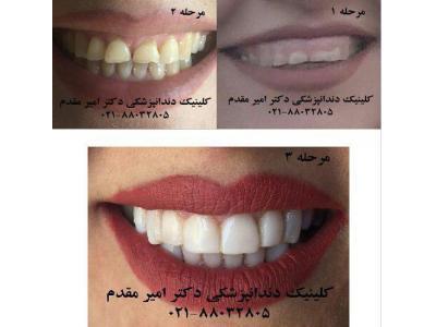 دندانپزشک تهران  - ملاصدرا 02188032805 انواع ایمپلنت و کاشت دندان ، روکش دندان برای زیبایی ، پرکردن دندان