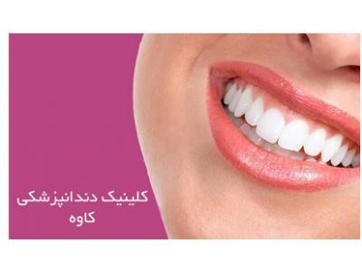 کلینیک تخصصی دندانپزشکی در قیطریه ،  ایمپلنت و کامپوزیت ونیر