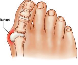 کلینیک فوق تخصصی کفش طبی بهکارنیک