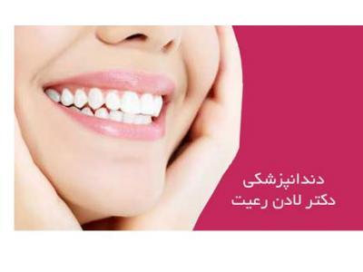 کلینیک دندانپزشکی دکتر لادن رعیت - جراح و دندانپزشک زیبایی